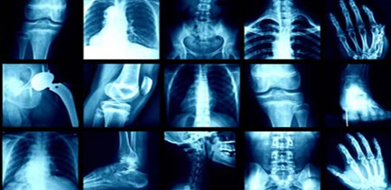X-Ray!